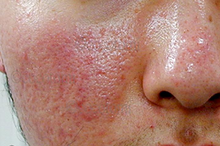 脂漏性皮膚