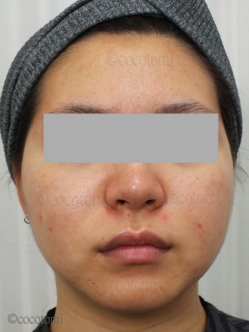 ニキビと頬の赤み、小鼻の赤みの対策体験談