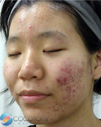 化膿しやすいニキビが、徐々に化膿しなくなり、ニキビ自体もできにくくなりました。