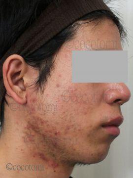 顎のラインから顎下の赤ニキビの悩み
