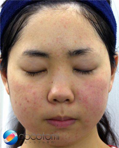 脂漏性皮膚による頬の赤み対策