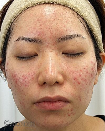 ニキビ対策で、頬のニキビ跡の赤みが気にならないように。