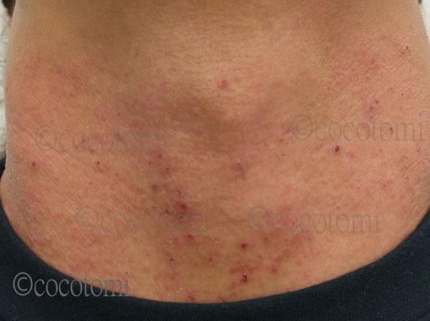 首が乾燥して、痒く、湿疹や赤くなった肌