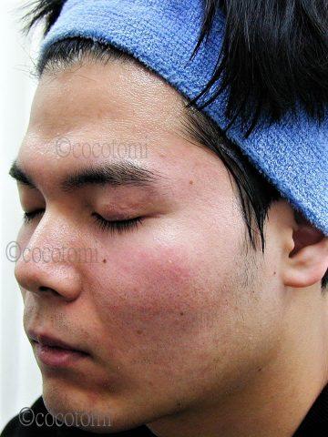 レーザー治療を受けても脂漏性による毛穴の開きと赤みは消えませんでした