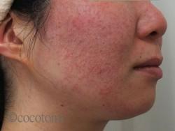 薬の影響で、ざらついた赤ら顔