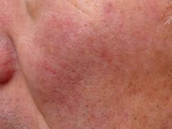 頬全体の肌が薄く赤ら顔