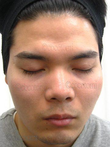 赤ら顔改善