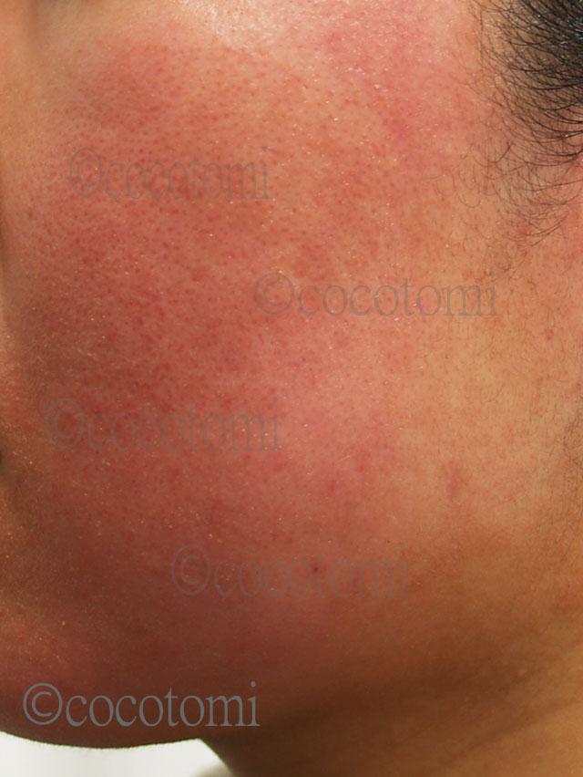 肌断食で赤ら顔が治るとは限りません