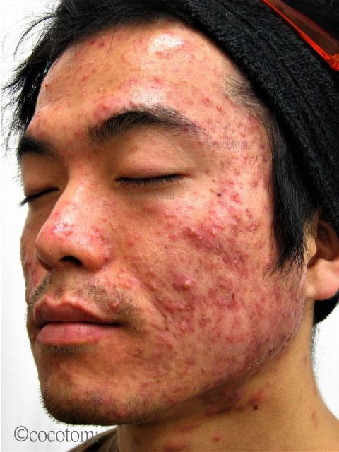 腫れと痒みを伴うニキビの対策