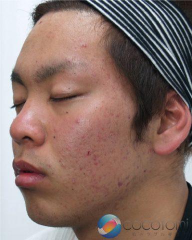 頬の赤ニキビ、肌の赤みが元の肌色になりました。