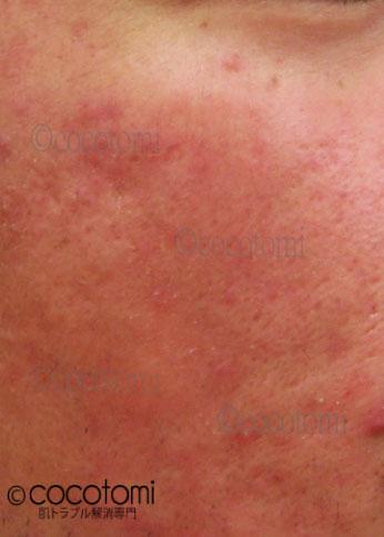 レーザーやピーリングによる肌の赤み