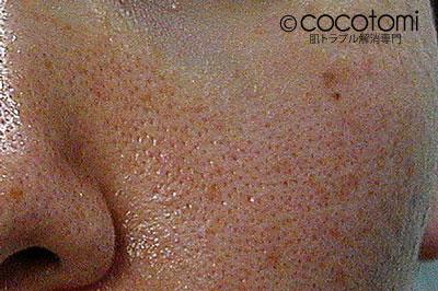 毛穴の赤みと毛穴の開きと脂肌