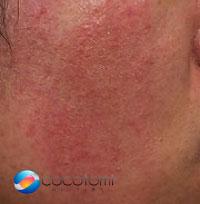 ステロイド薬や抗菌薬を使い過ぎると赤ら顔