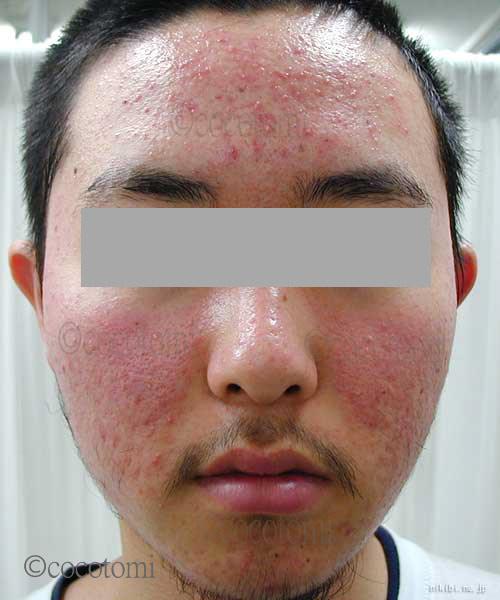 脂漏性皮膚 赤ら顔