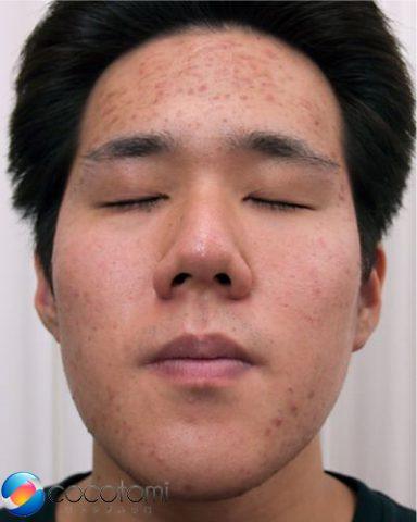 遠方でも、顎下のニキビや額の赤ニキビ対策が安心してできました。