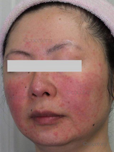 あなたの頬の赤みは、ざらついて乾燥した肌の赤み?