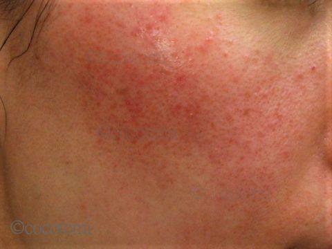 毛穴が赤みやブツができた脂漏性と赤ら顔