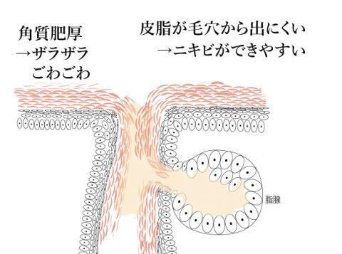 角質肥厚の毛孔